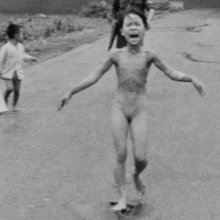 'Napalm Girl' in AP Photo Undergoes Treatment