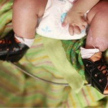 Canvassing support: Helping children with clubfoot - BBC News