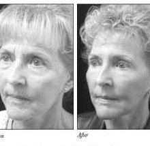 Airbrush Facelift - Health Article