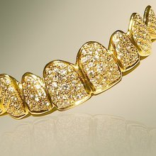Dubai clinic launches $153,000 gold, diamond dentures