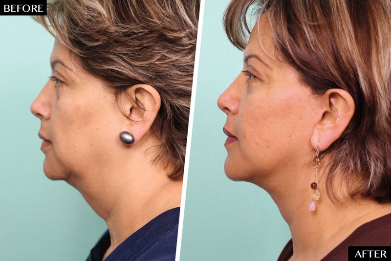 Facelifts in Your 40s - NewBeauty