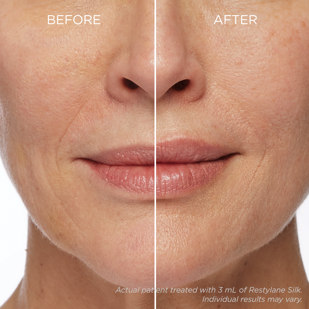Wrinkle Reduction New London