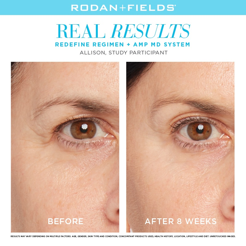 Rodan + Fields New Anti-Aging Eye Products - NewBeauty