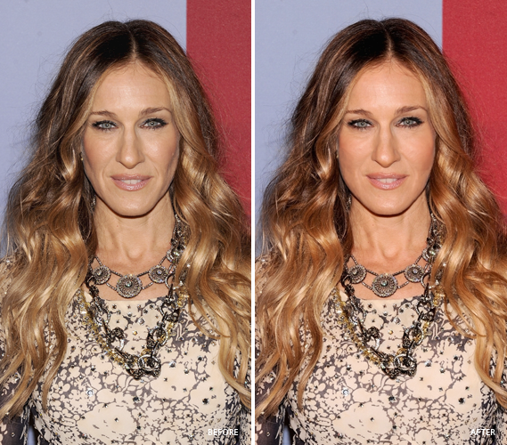 Celebrity before and after photos - Celebrity The Beauty ...