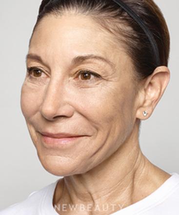 Dr Ava Shamban Dermatologist Santa Monica California