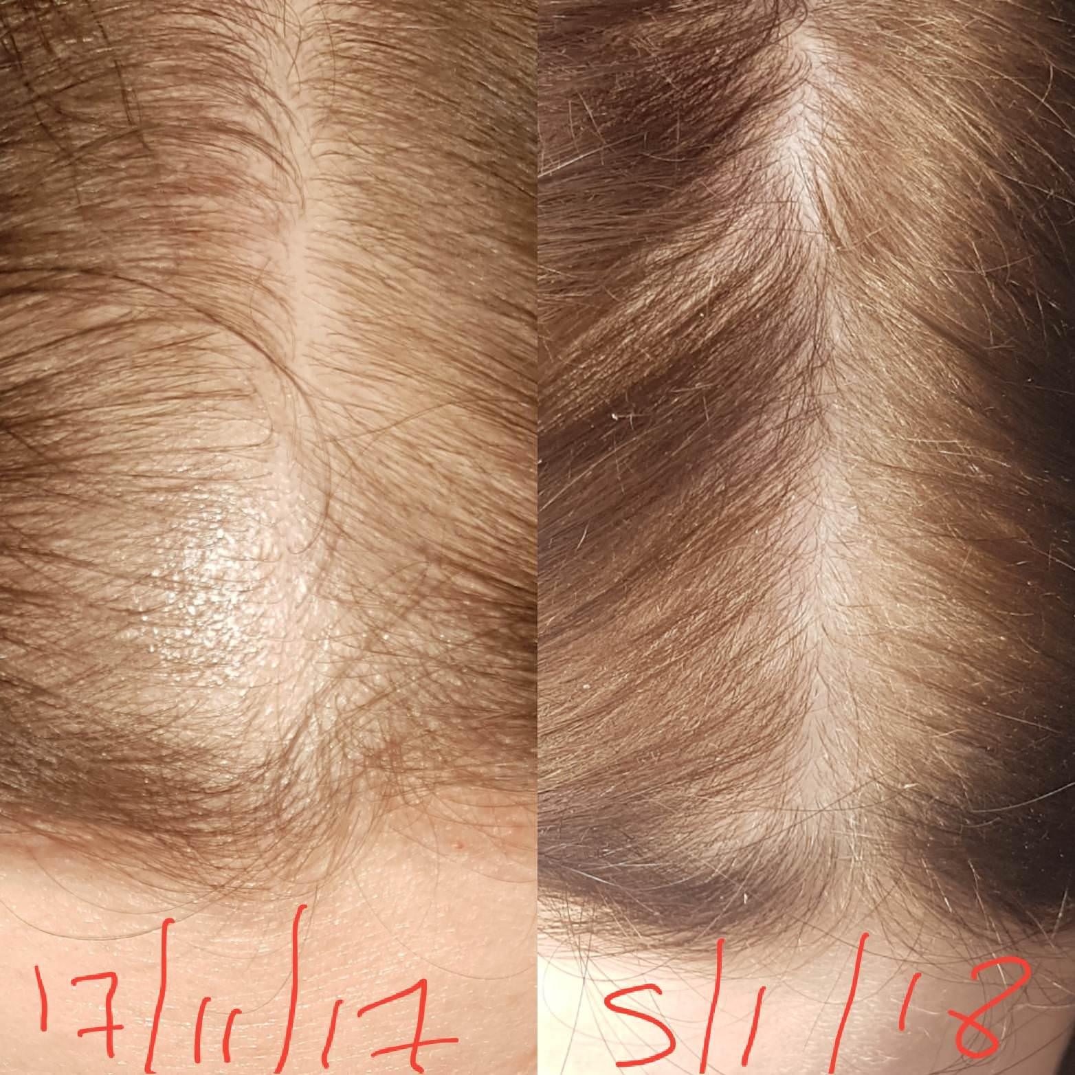 Rogaine To Grow Back Hair Minoxidil Hair Dailybeauty The