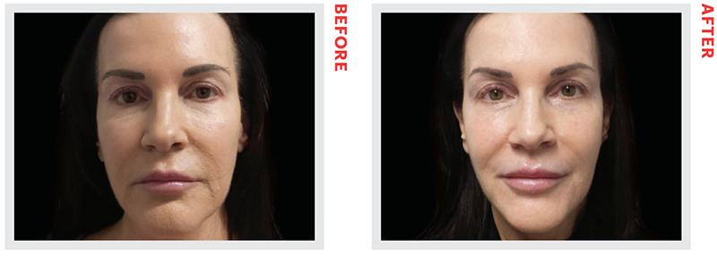 Facelift Surgery - NewBeauty