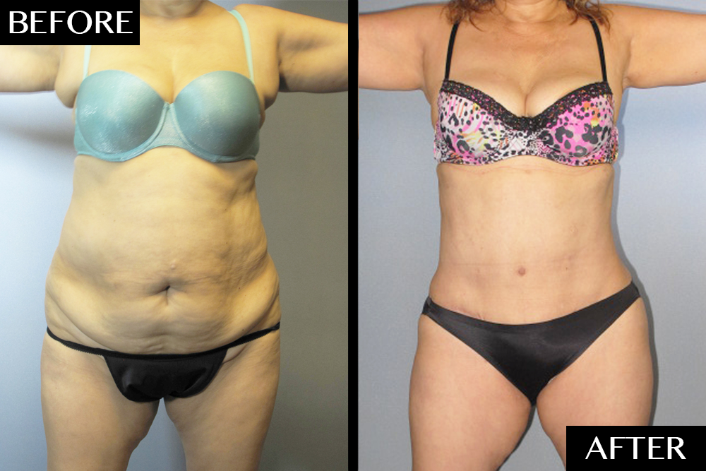 Dramatic Tummy Tuck Transformations by Dr  German Newall