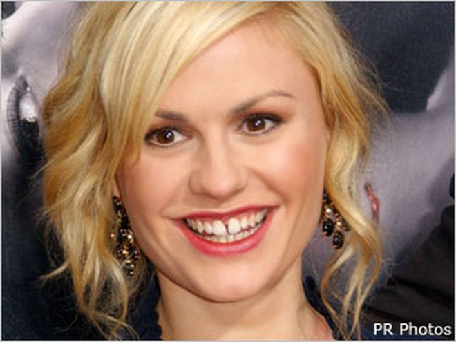 Gap Toothed And Gorgeous The Latest Beauty Trend Rebuffs