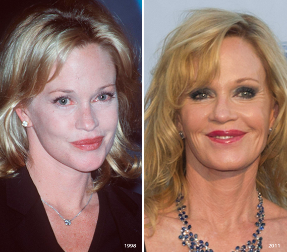Celebrities With Injections Botox Over Injected The Beauty