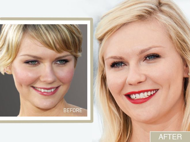 Kirsten Dunst S Smile Makeover From Crooked To Confident
