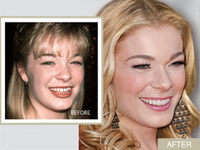 Leann Rimes Smile Makeover From Gappy To Glam Smile