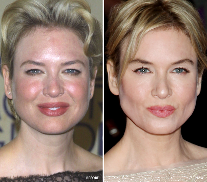Celebrities Who Fixed Bad Skin Adult Acne pimples - Adult