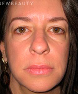 Dr Bernard Raskin Dermatologist Valencia California