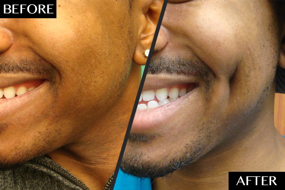 La Dimpleplasty, une procédure de 30 minutes dont vous n'avez jamais entendu parler est sérieusement tendance 3