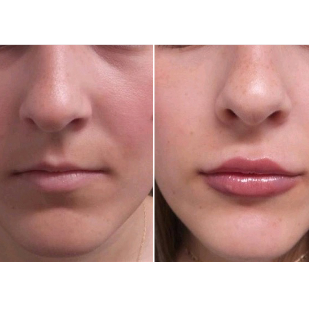 Tacoma Laser Clinic The Best Lip Enhancement Treatment