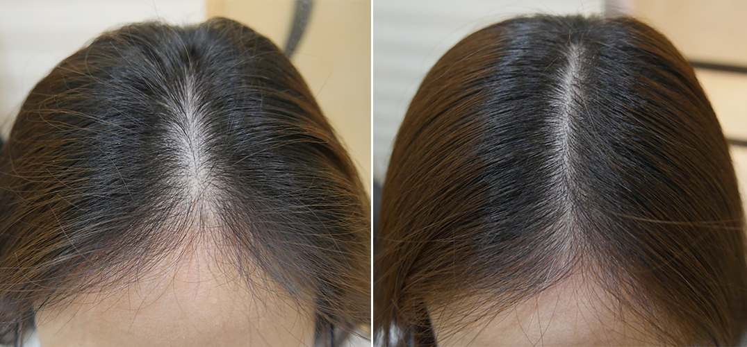 Vitamin C For Hair Loss Thinning Hair Loss Hair Dailybeauty