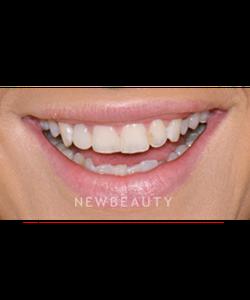 Goldstein Garber Amp Salama Llc Cosmetic Dentist