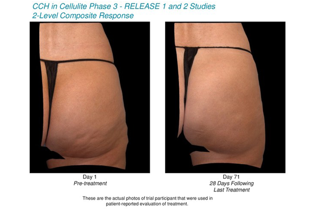 Cellulite Injection Coming Soon - NewBeauty