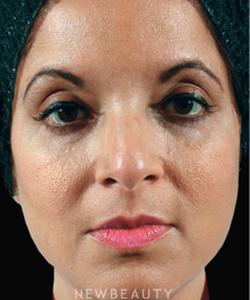 Dr Marina Peredo Dermatologist New York City New