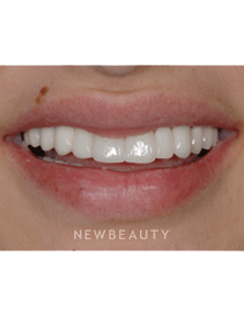 Before Amp After The Beauty Authority Newbeauty