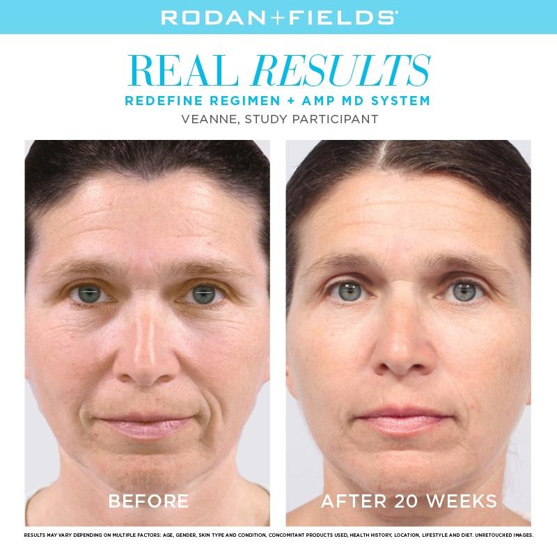 Rodan + Campos Novos Anti-Envelhecimento Produtos Para Os Olhos    - Anti-Envelhecimento    - Cuidados Com A Pele    - DailyBeauty -  A Beleza Autoridade
