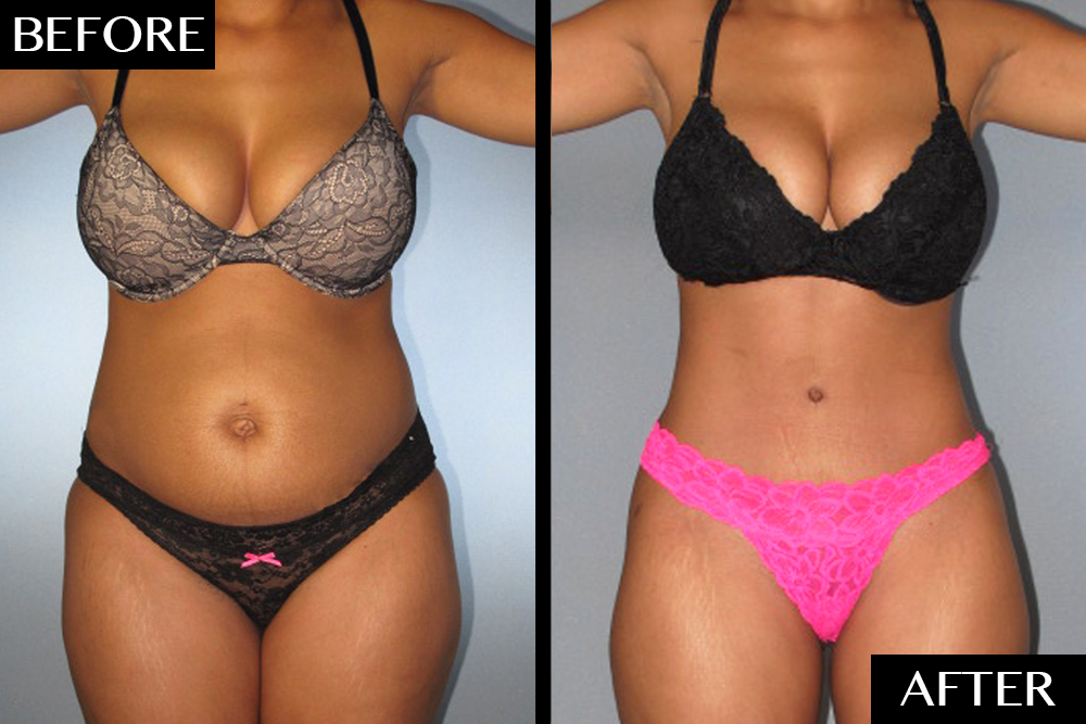 Dramatic Tummy Tuck Transformations By Dr German Newall Cosmetic