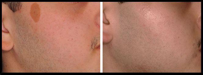 Lumenis PiQo4 Laser Treatment to Target Skin Pigmentation