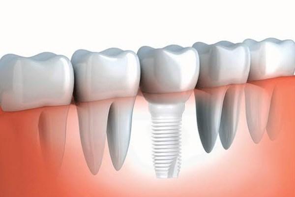Teeth 1 - 9 Reasons to get a Dental Crown