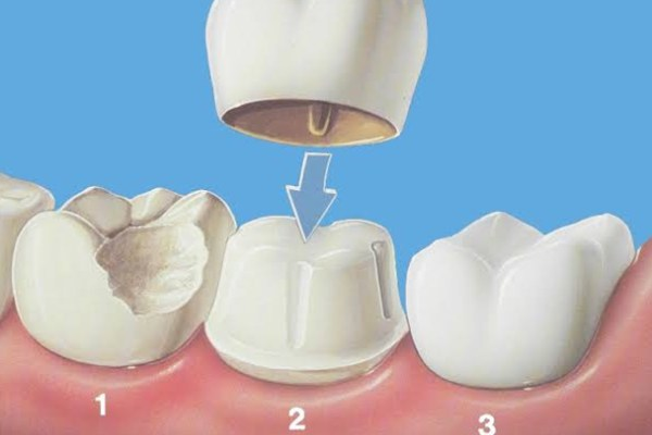 Dental Crown - 9 Reasons to get a Dental Crown