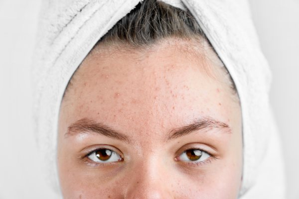 remove blackhead at home - Best ways to Home Remedy for Your Skin Care