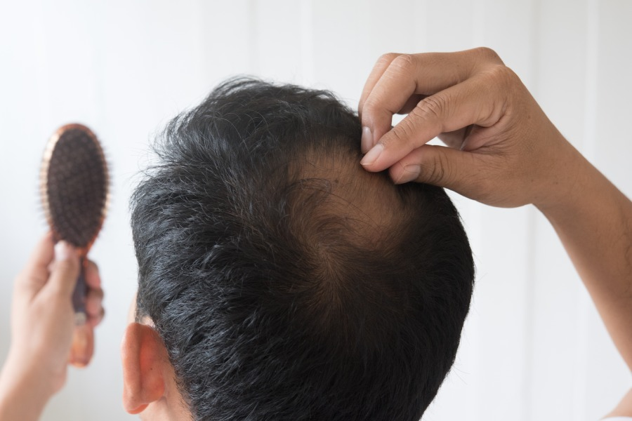 How to Reduce Hair Fall at Home remedy - How to Reduce Hair Fall at Home