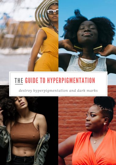 Guide-to-Hyperpigmentation
