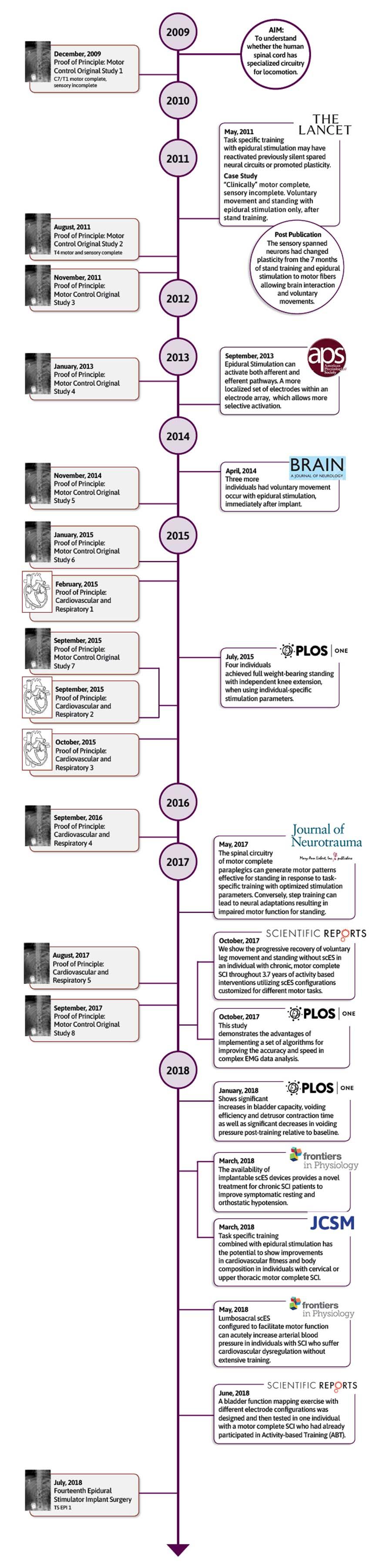 Epidural Timeline