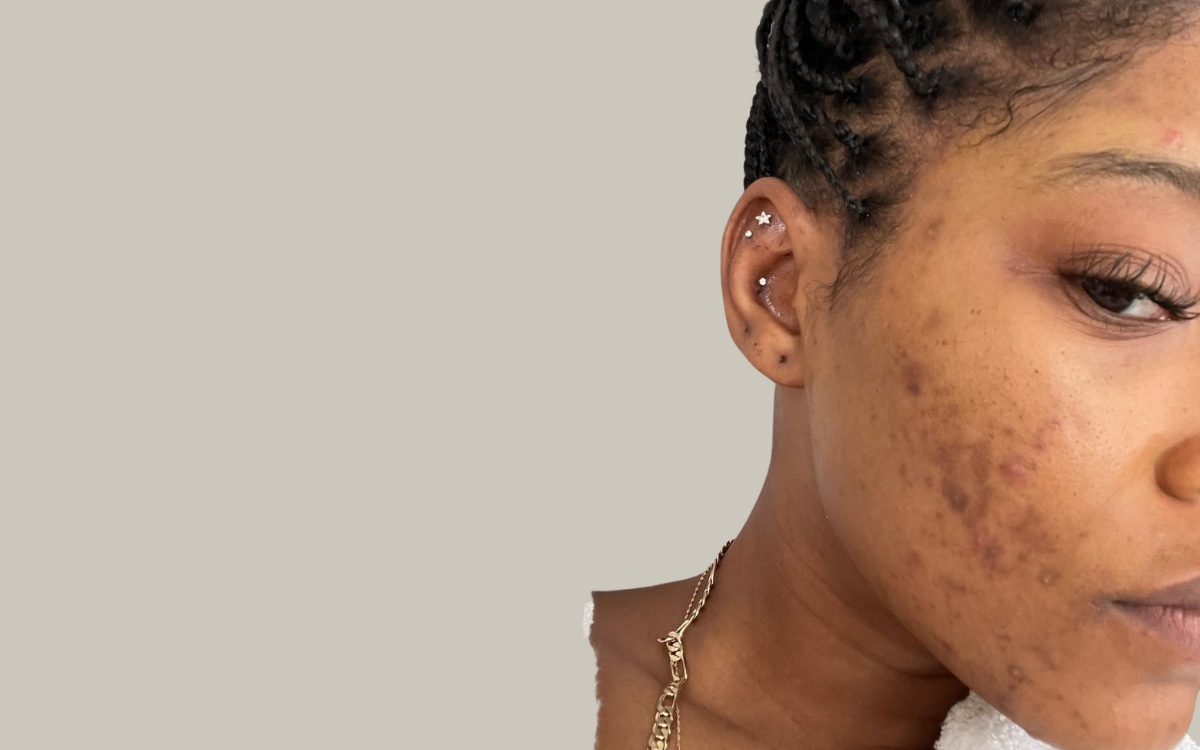 Keke Palmer Bares All in IG Post About Acne and PCOS Diagnosis