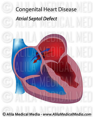 Congenital heart disease: atrial septal defect