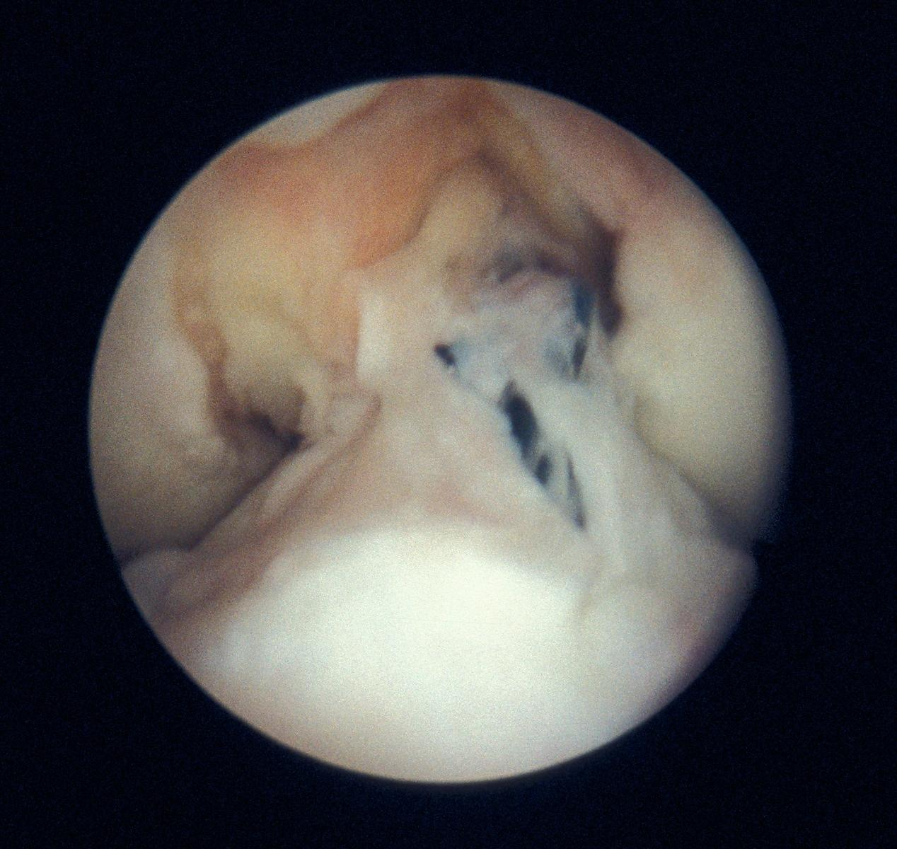 View of the intercondylar notch following repair to anterior cruciate ligament with Surgicraft ABC carbon fibre polyester ligament, immediately after implantation. Also note removal of osteophytes aroound the interaconylar notch.