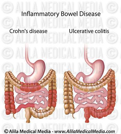inflammatory bowel disease crohns disease
