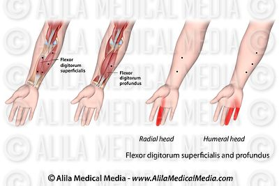 Trigger points and referred pain for the flexor digitorum superficialis and profundus