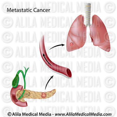 Metastatic cancer diagram