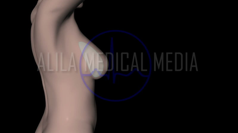 Breast implant animation
