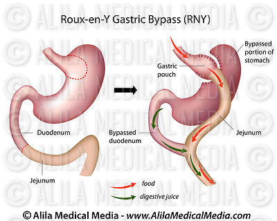 Roux-en-Y Gastric Bypass (RNY) surgery