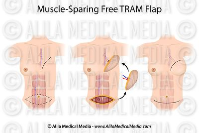 Muscle-sparing free TRAM flap