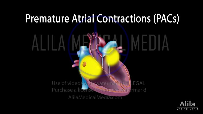 Premature atrial contractions NARRATED animation