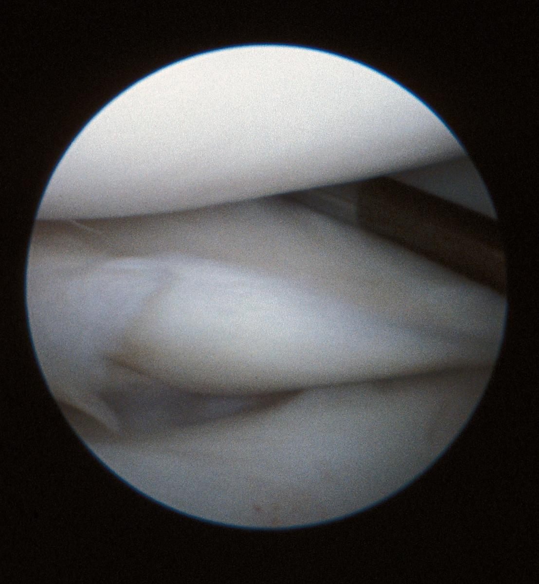 Meniscal tear with torn piece being retracted anteriorly
