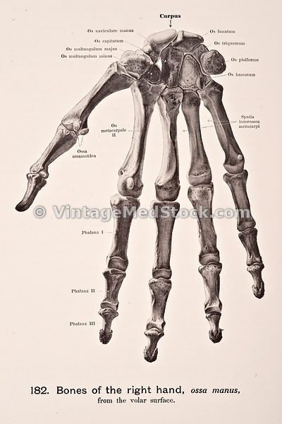 Bones of the Right Hand