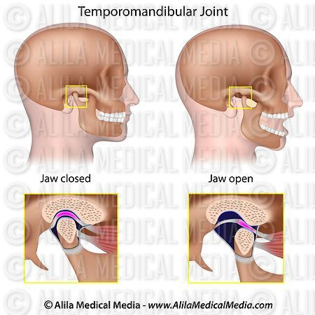 Alila Medical Media | Temporomandibular joint (TMJ) labeled ...
