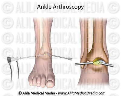 Ankle arthroscopy diagram.