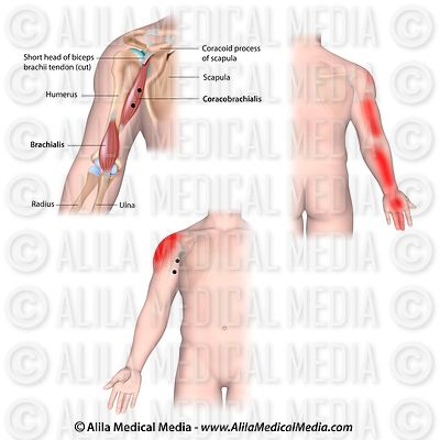 Trigger points and referred pain for the coracobrachialis