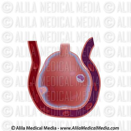 alila medical media structure of an alveolus unlabeled. Black Bedroom Furniture Sets. Home Design Ideas